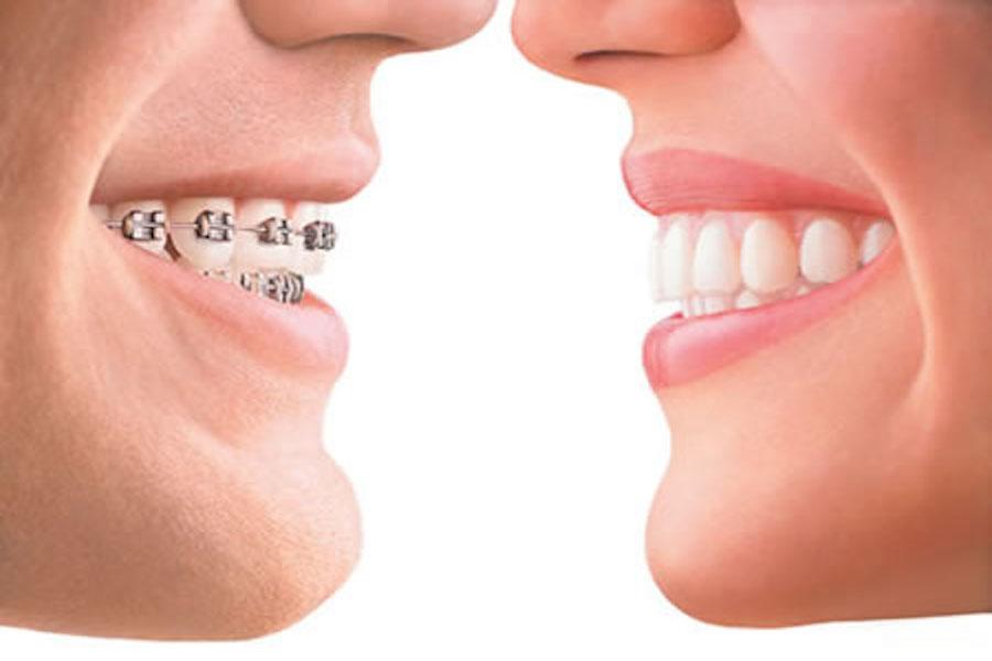 Ortodonzia apparecchi